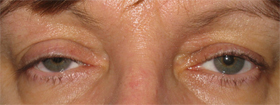 Ptosis (Droopy Eye Lids)